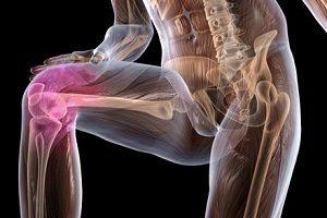 Mazi artroosi jalgade raviks