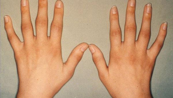 Artriit 2 kuunarnuki kraadi