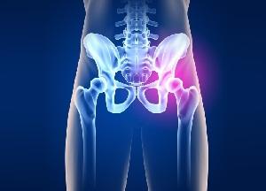 valutab liigese jalgade peal Artroosi liigeste kreemid