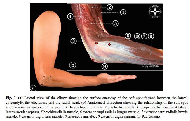 Elbow liigese 1-2 artroos Folk oiguskaitsevahendid artroosi raviks
