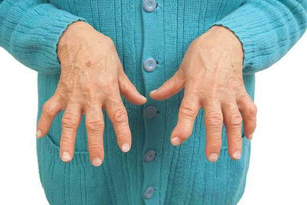 Nekroosi liigeste ravi Talk ja Hematoomid sorme liigese
