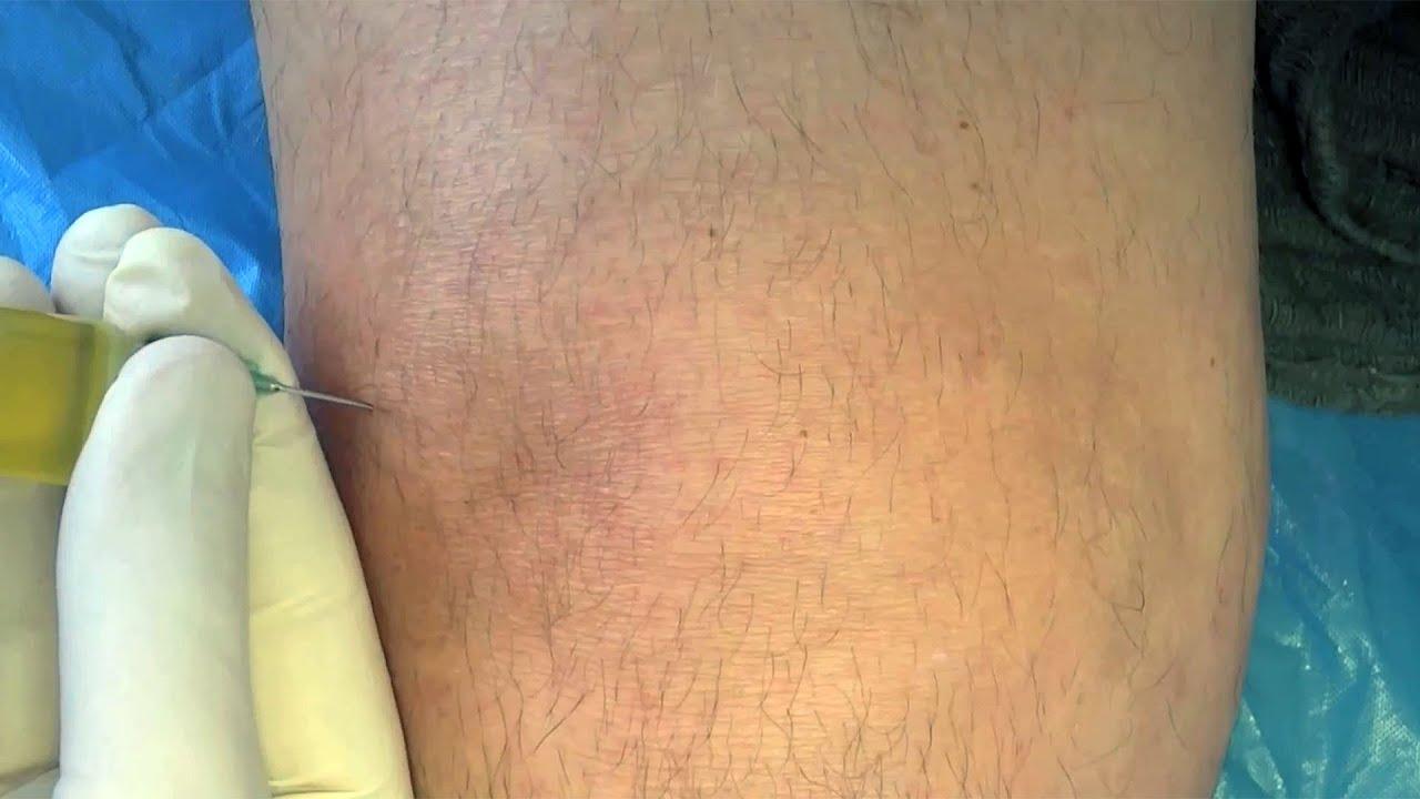 Haigused kuunarnuki liigese mees Bursit Mida sa ei saa suua liigesevalu