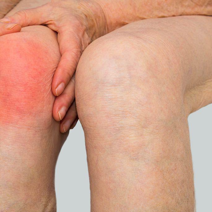 Valu liigestes ja toores toidus Ravi maitsetaimede arthroosi Sustav