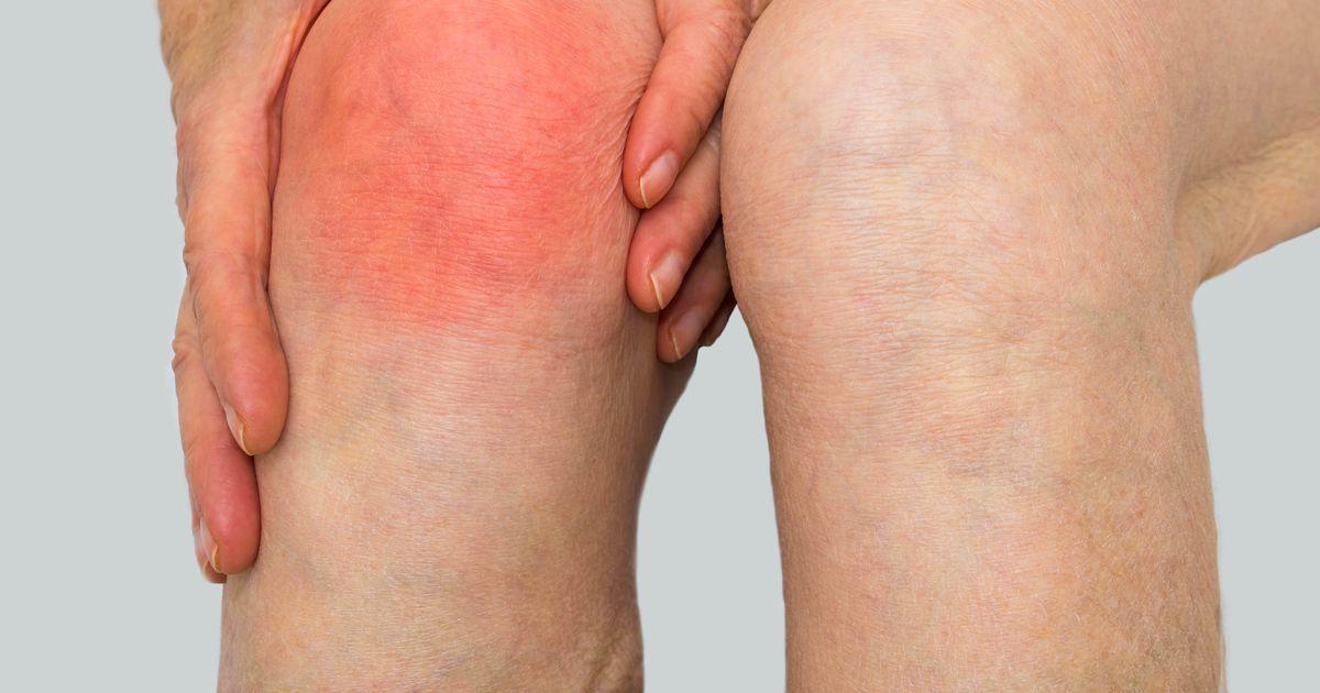 Varvid sormede liigestele Katega liigeste artriit