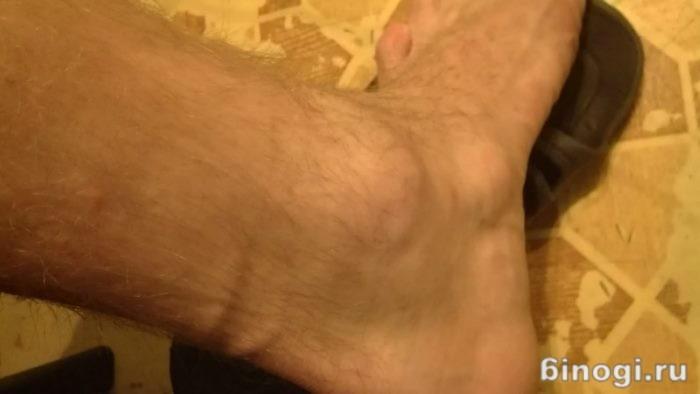 Thumbi liigese poletik Artrosi jooksja ravi