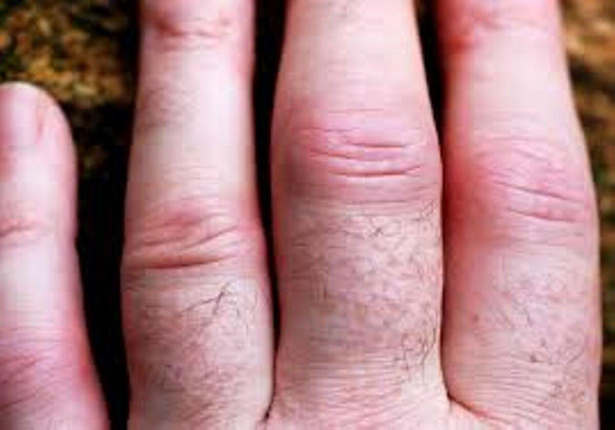 Sormetele artriidi margid Haiget harja ema neiu