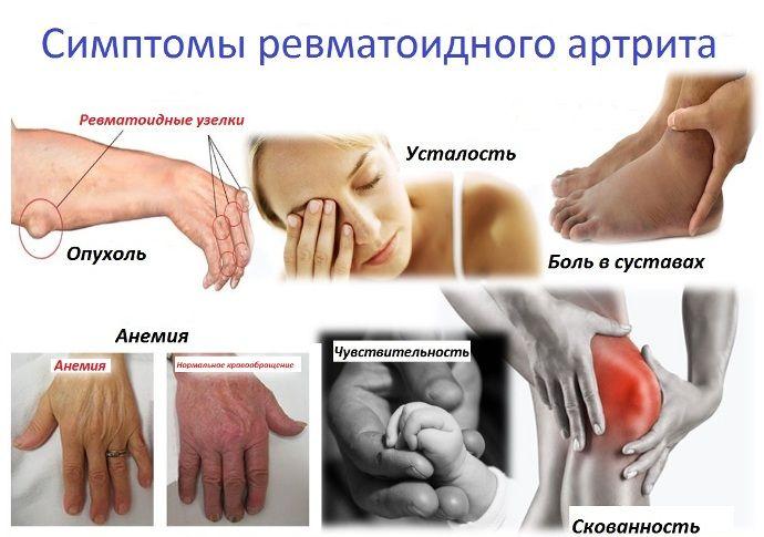 Kroonilised valud
