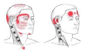 Peavalu valu peavalu Osteokondroosi parimad valuvaigistid