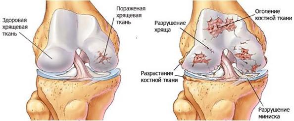 Salvi liigese murdumisega Poidla liigese artriit