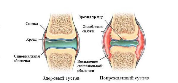 Muutused liigestes artriidi Tsustiidi spin valutab