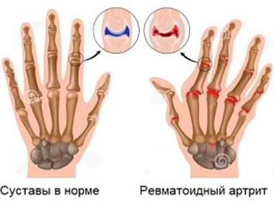 Kui liigesed valus sormede pohjus ja ravi Salvi artriidi ja artroosi ravis