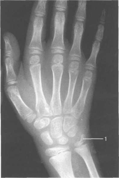 Artrohi ravi 1-3 etappi