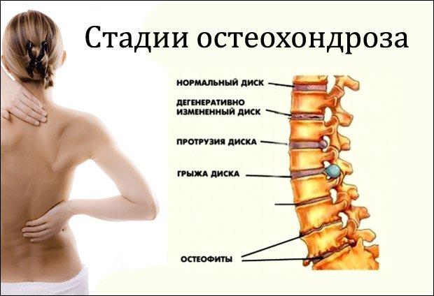 Osteokondroosi ajal kaela valu salvi