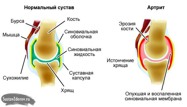 Ravi maitsetaimede arthroosi Sustav Valu kuunarnukis ja kuunarvarre