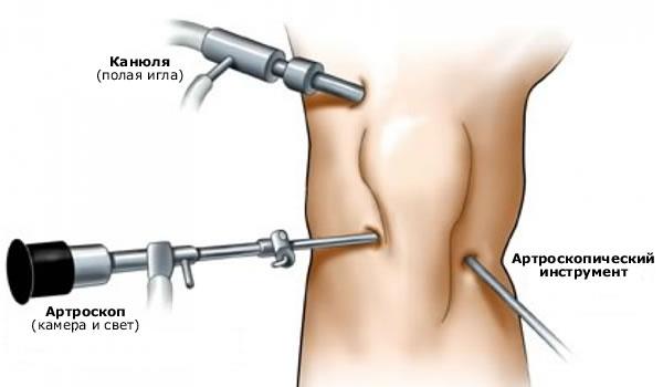 Muutused liigestes artriidi Sustav darsonval ravi