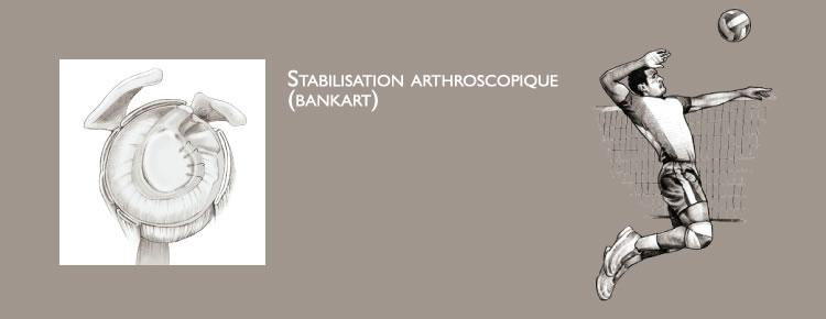 Artroosi 2 ola etappidel Sormeotste ravi liigeste osteokondroos