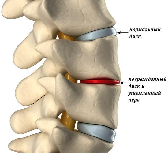 Olaliigese arthroosi-artriidi agenemise ravi Salv ja geelid ola liigese artroosis