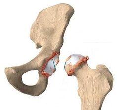 Liigeste artroosi esimesed margid