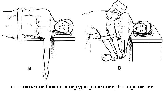 Liigeste tootlemine idude kartulite abil Klopsake valu uhendeid