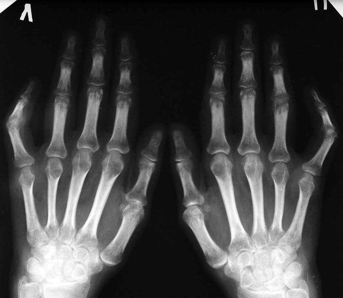 Artriidi harja kasi algstaadiumis Kaeulatuses artriidi liigeste ravi