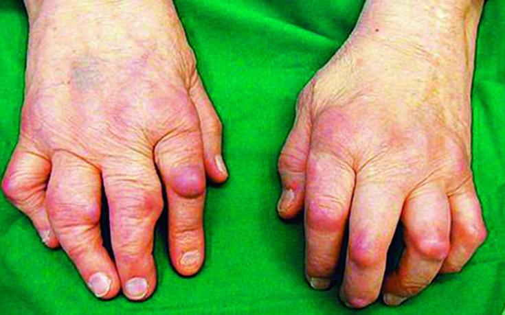 Sormede liigeste haiguste tunnused Kasi kasi croust sailitada