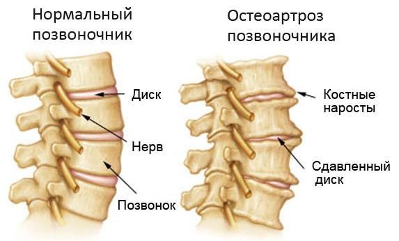Valu vasakul puusaliigendis