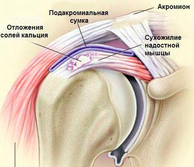 Vasaku ola artroos sailitab 1 kraadi Mida tahendab valu ola liigese keskmine
