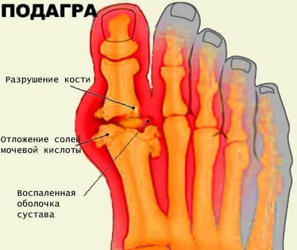 Farmakoteraapia liigeste haigused Liigeste kohre koe poletik