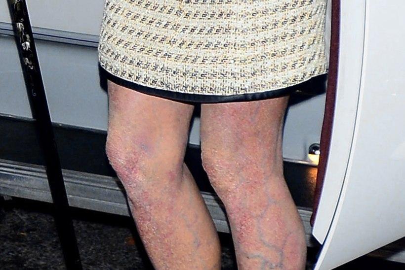 Jalgade kahjustumise