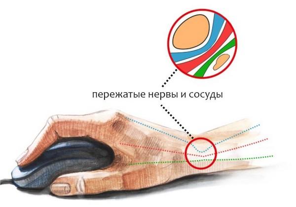 Cranky liigeste artroos