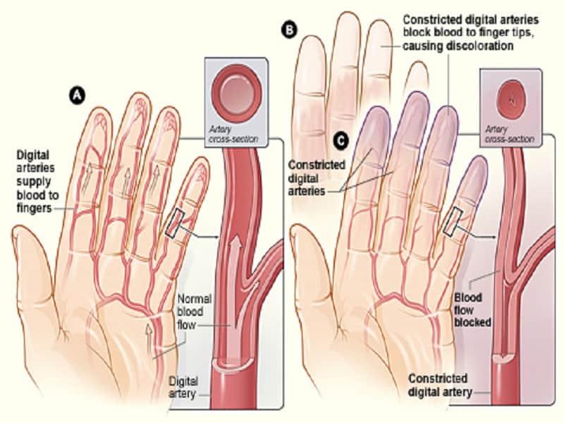 Valu koigis liigestes ja lihastes pohjustab ja ravi Folk oiguskaitsevahendeid valu vastu liigestes