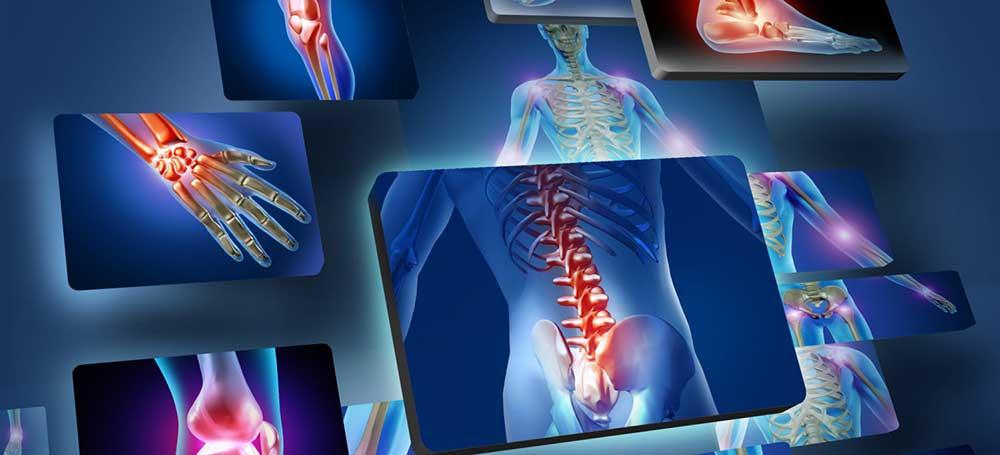 Arkoksia arkoksia ravi Valu liigeste eemaldamine