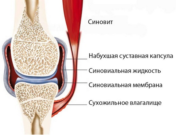 Tahendab valu liigeste ja sidemete valu