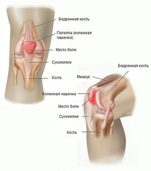 valutab kuunarnukil liigese kui maarduda Vaike jala liigeste artriit artriit