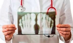 Artroosi ja artriidi nalga ravi Uhenduste salvi soojenemine