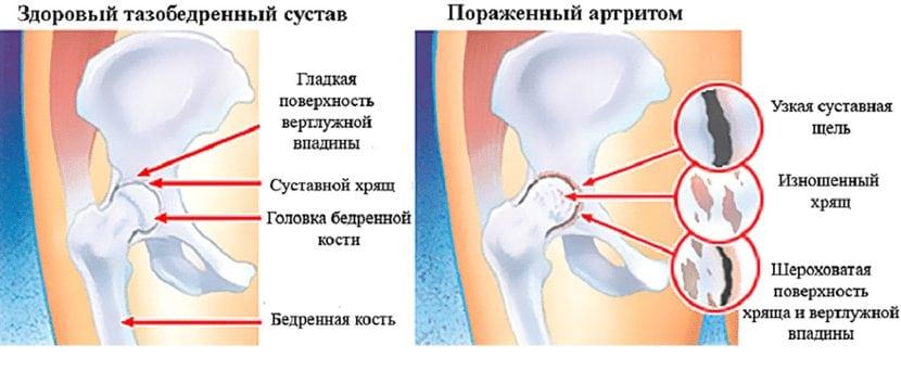 Mis vahe on linna liigese artriidi vahel