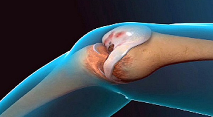 Liigeste ja sidemete ennetamine Messel valu liigestes