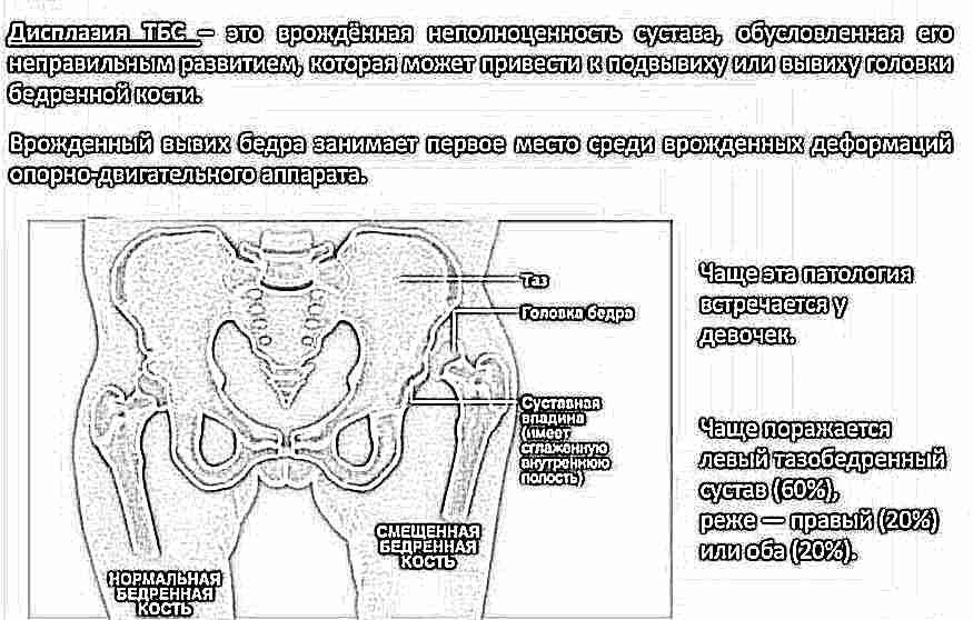 Vasaku ola artroos sailitab 1 kraadi Uleujutatud polve tarud