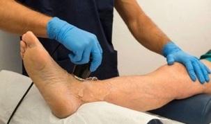 Artroosi ravimise tulemus Bold polved ulevalt