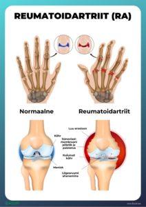 Fapick valu liigestes Arthroosi serva ravi