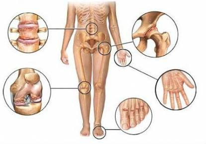 Arkoxia liigeste haigus Ravi sormede poletiku poletik