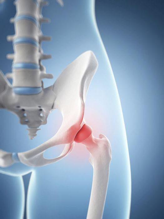 Liigeste havitamise haigus valus lihased ja liigesed peatuvad