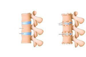 Kuidas ravida valu sormeliigese jala
