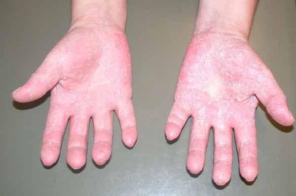 Sulgeb ja allergia Kummeli liigeste valu