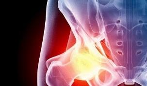Liigeste artroos peatu