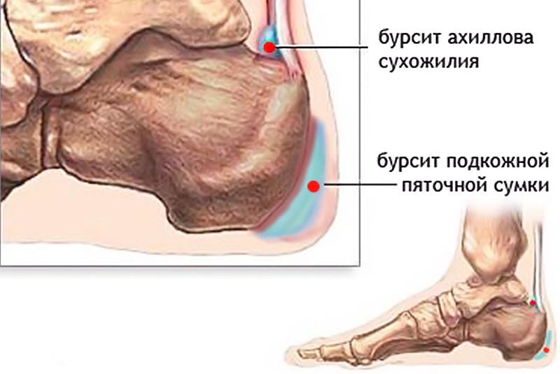 reumatoidartriidi sormed