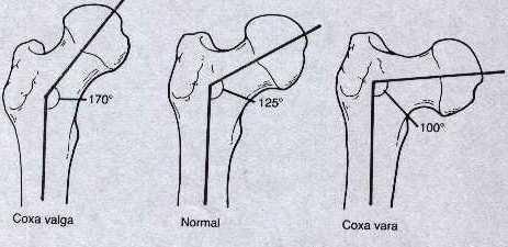 Salv valu liigeste hind Gout Artrosi ravi