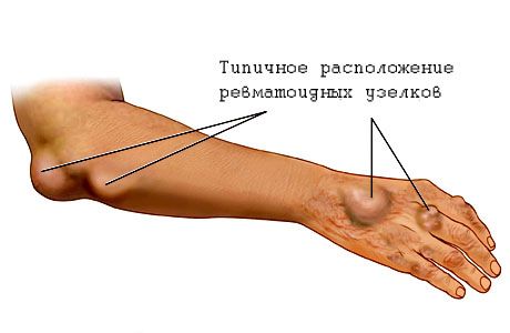 Arthriisia salvi liigestele