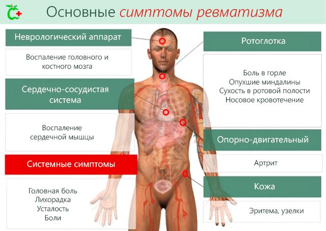 haavandid liigeste ravi Peamine valu tsirroosi