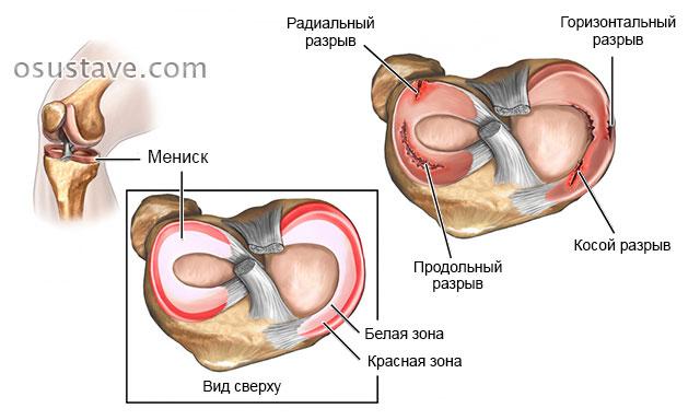 Osteokondroosi salv Tagajargede liigeste haigus